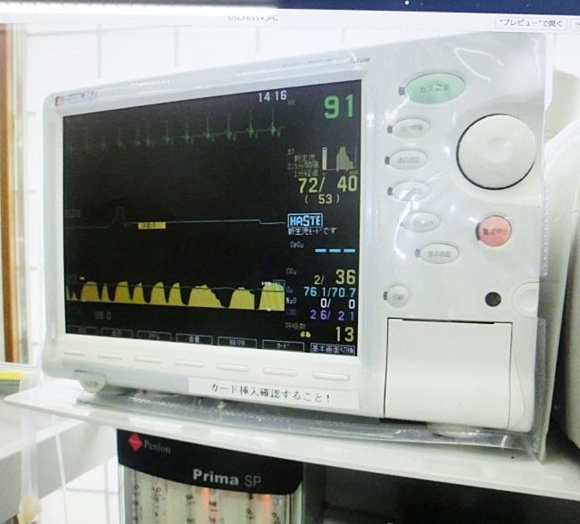 杏ちゃん施術中の心電図