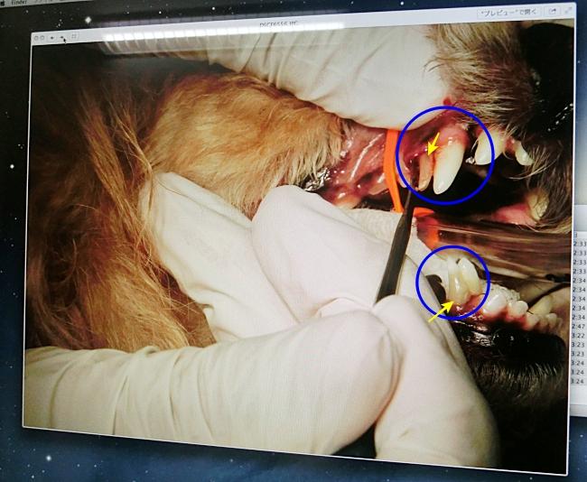杏の抜歯の手術前