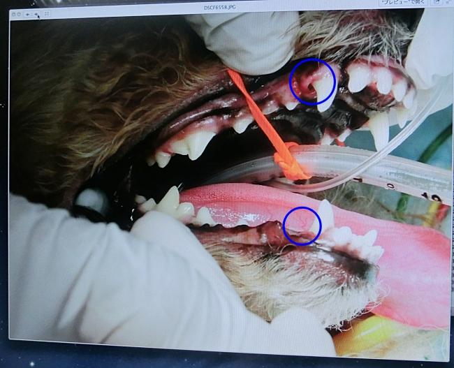 残留乳歯を抜歯した後